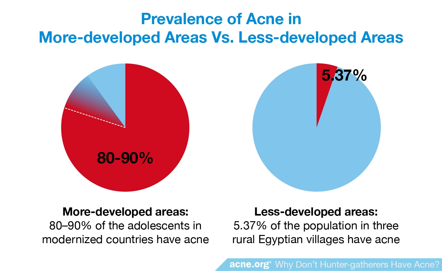 Prevalence of Acne in More-developed Areas vs. Less-developed Areas