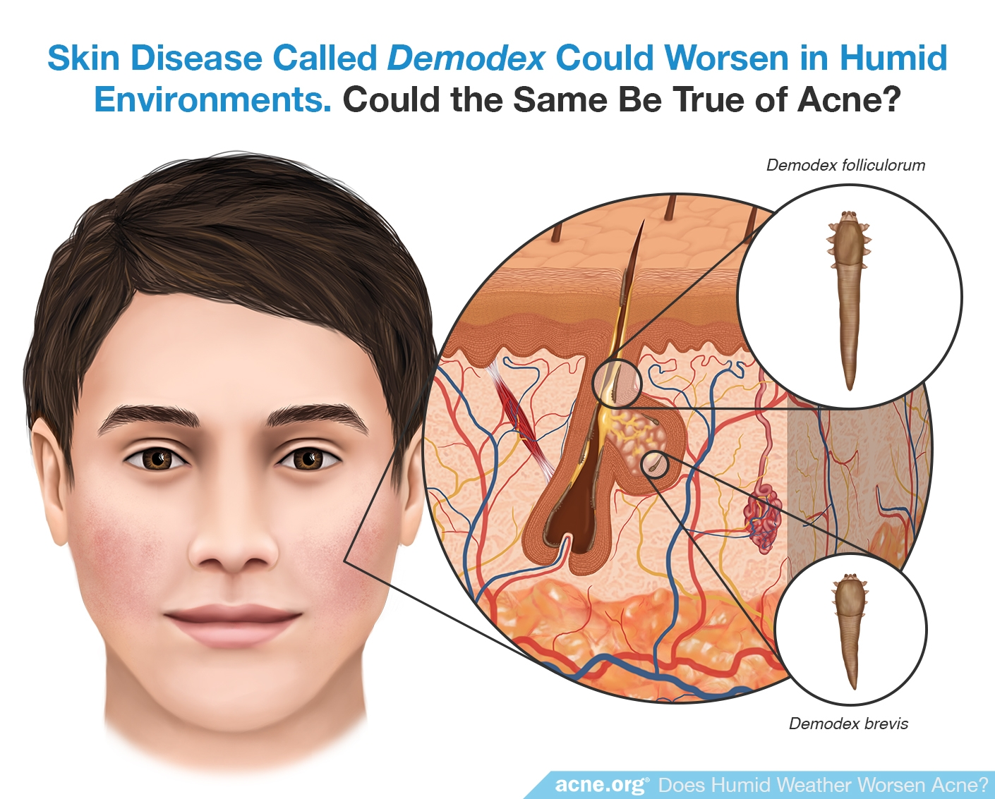 Demodex Could Worsen in Humid Environments - Could the Same Be True of Acne?