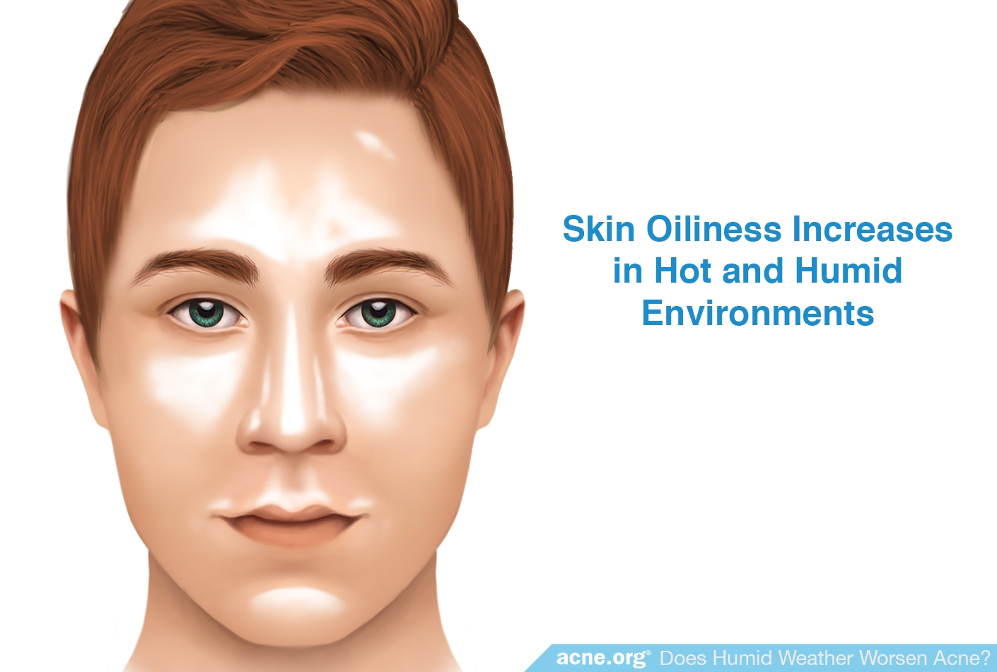 Skin Oiliness Increases in Hot and Humid Environments