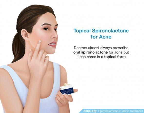 Topical Spironolactone for Acne