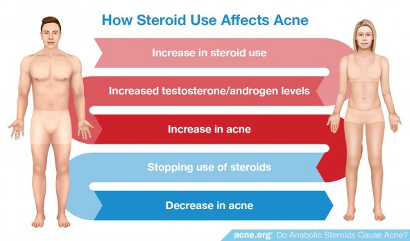 How Steroid Use Affects Acne