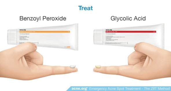 Treat: Benzoyl Peroxide and Glycolic Acid
