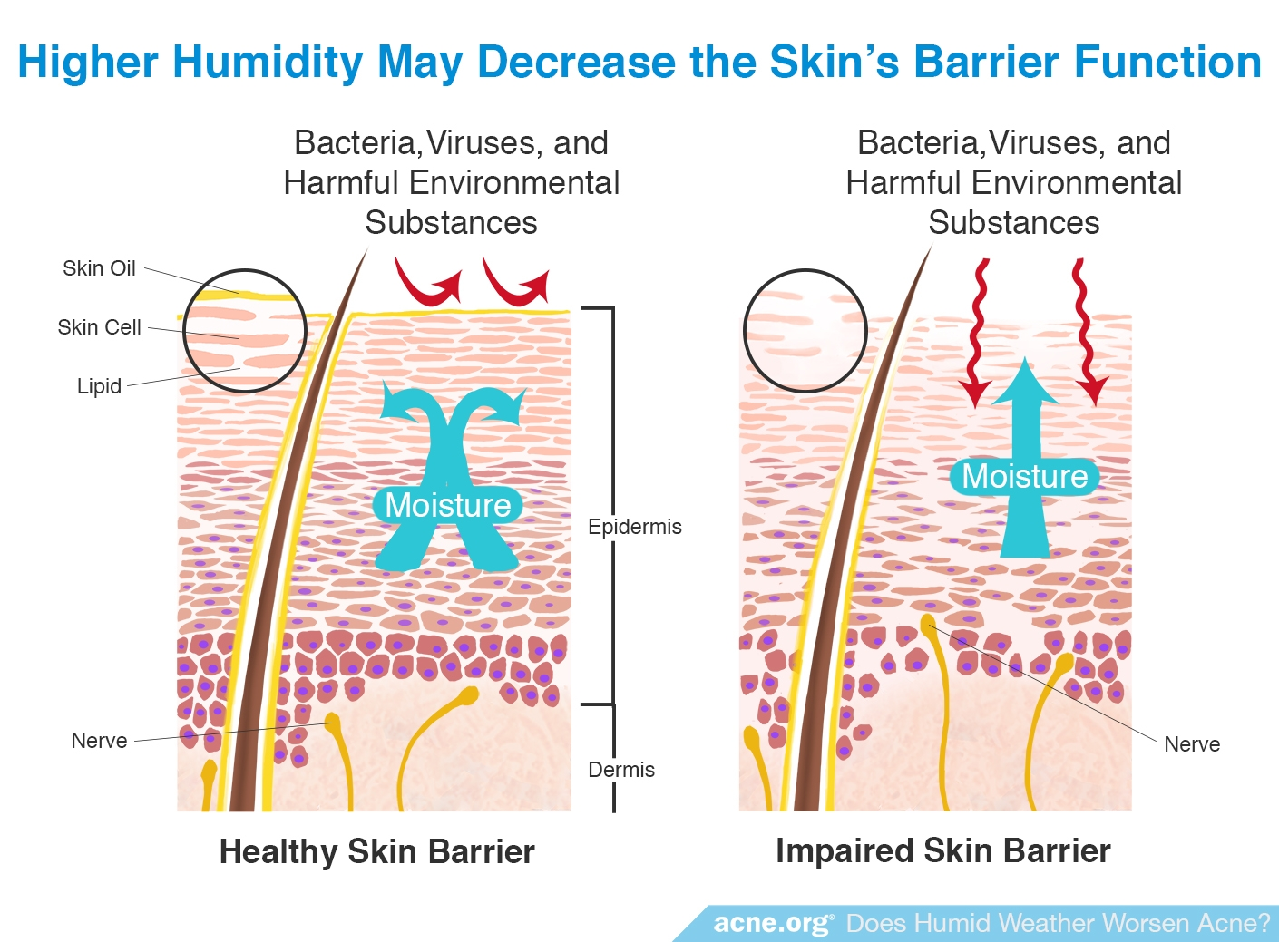 Higher Humidity May Decrease the Skin's Barrier Function