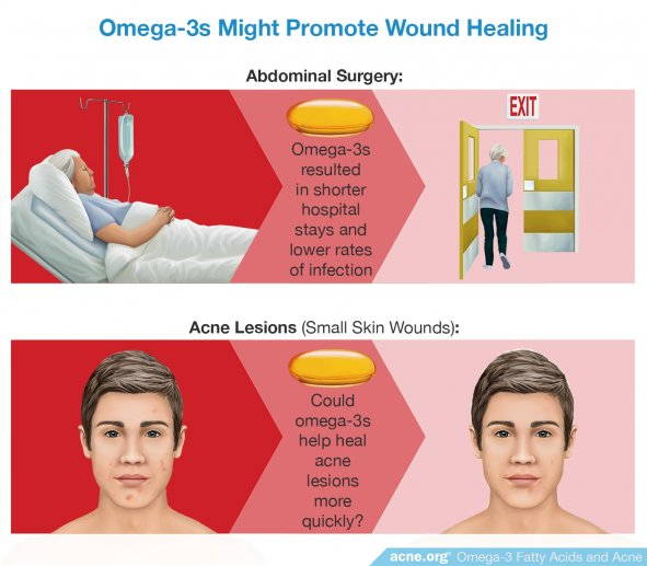 Omega-3s Might Promote Wound Healing