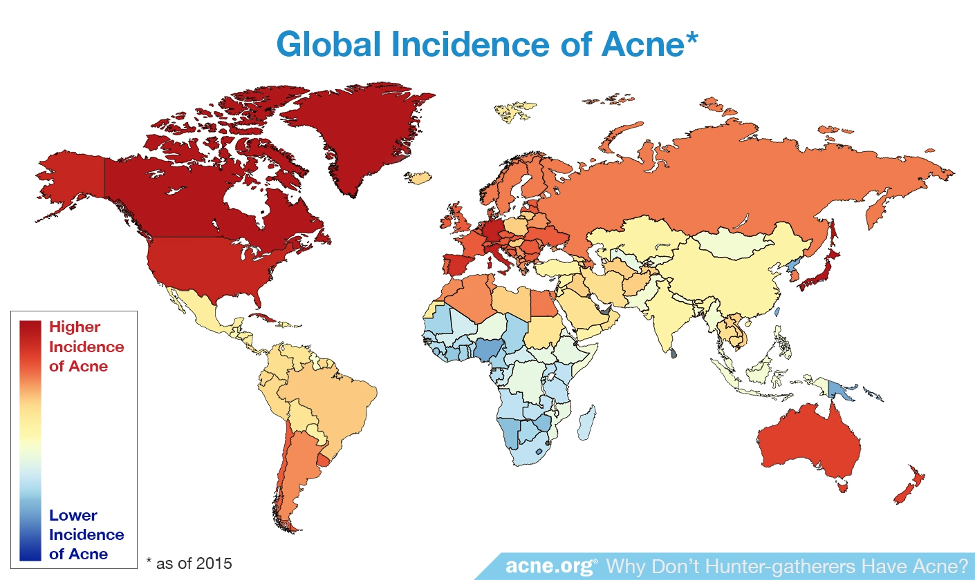 Global Incidence of Acne