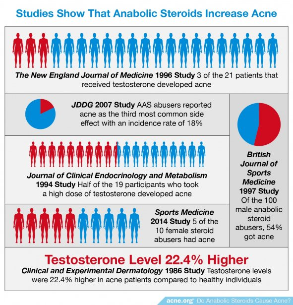 Studies Show That Anabolic Steroids Increase Acne