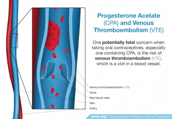 Progesterone Acetate and Venous Thromboembolism