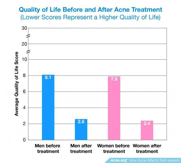 Quality of Life Before and After Acne Treatment