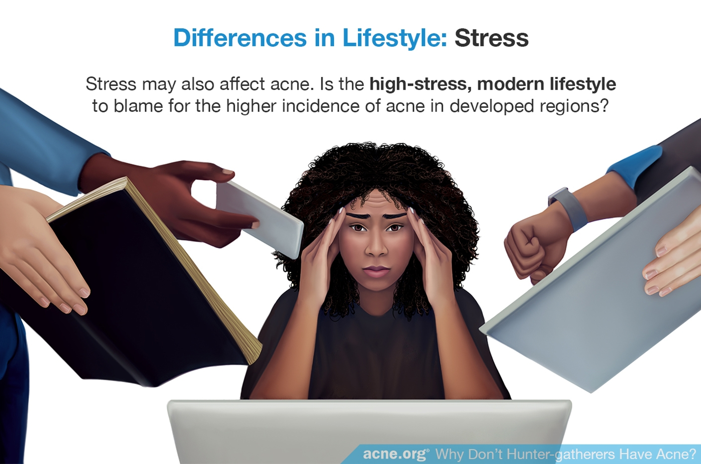 Differences in Lifestyle: Stress