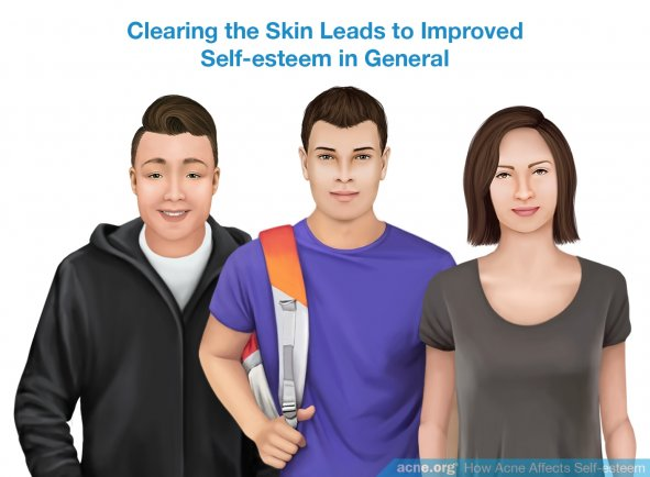Clearing the Skin Leads to Improved Self-esteem in General
