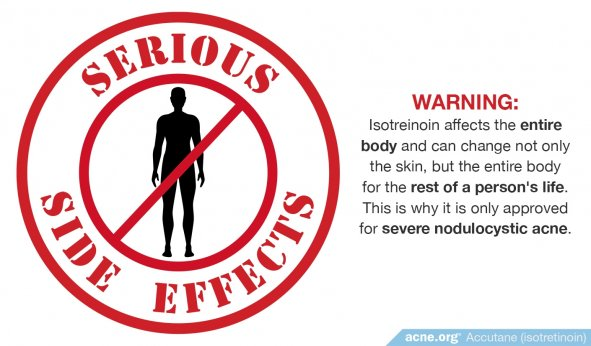 Isotretinoin Has Serious Side Effects