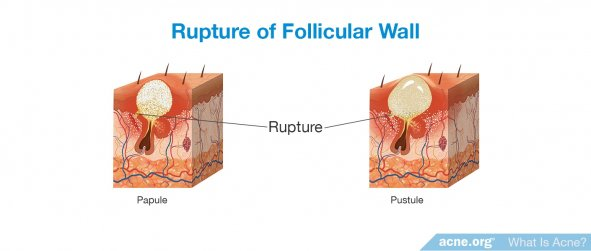 Rupture of Follicular Wall