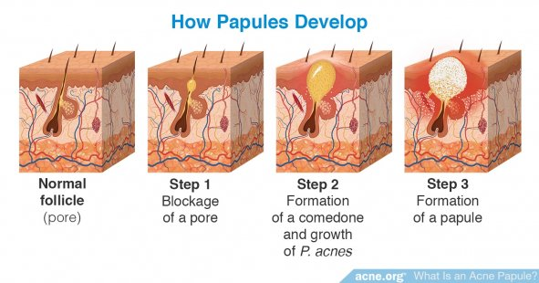 How Papules Develop