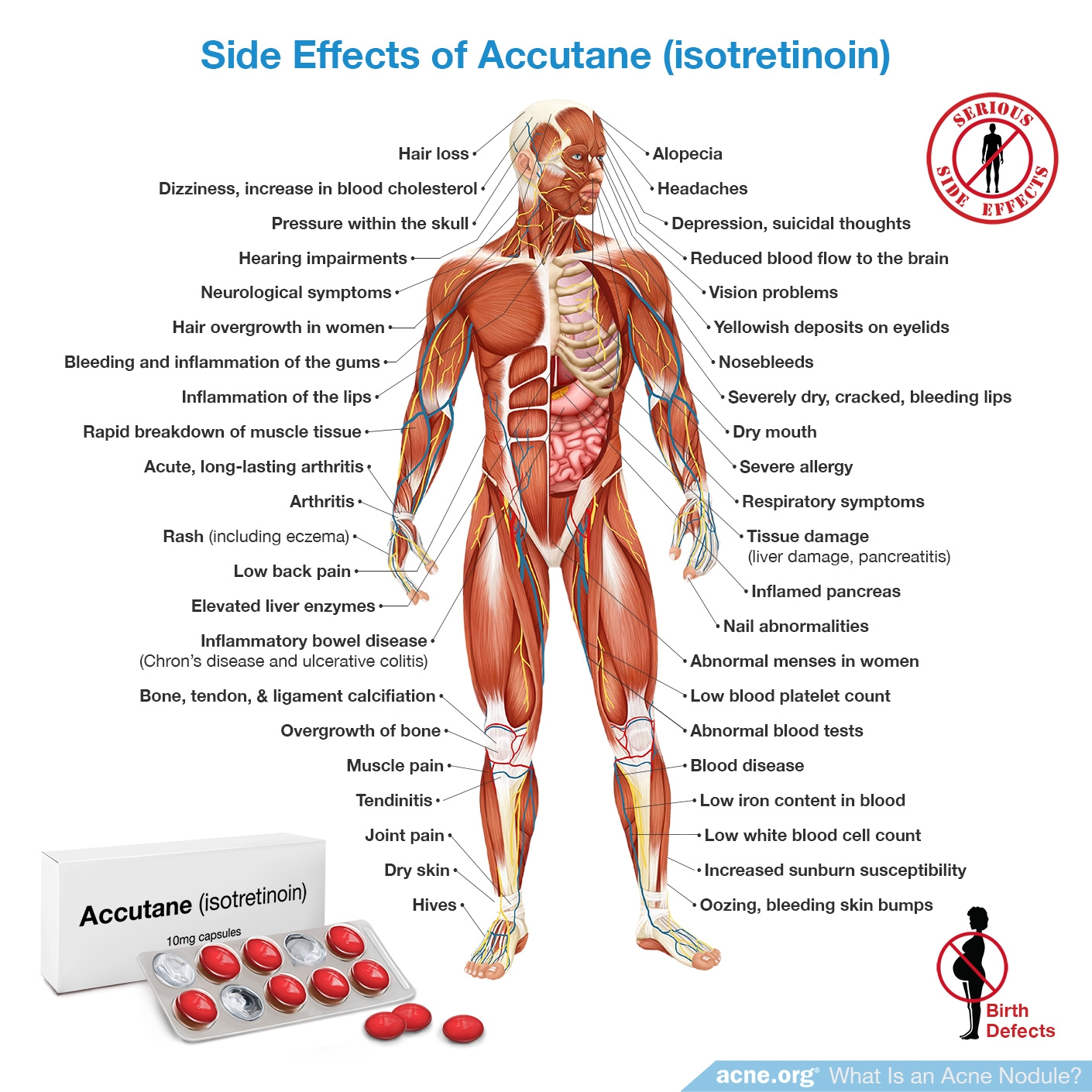 Side Effects of Accutane (isotretinoin) - Acne.org