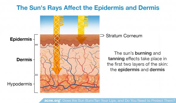 The Sun's Rays Affect the Epidermis and Dermis