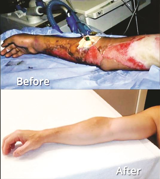 Skin-Gun-before-and-after.jpg