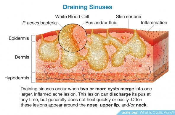Draining Sinuses