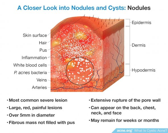 A Closer Look into Nodules and Cysts: Nodules