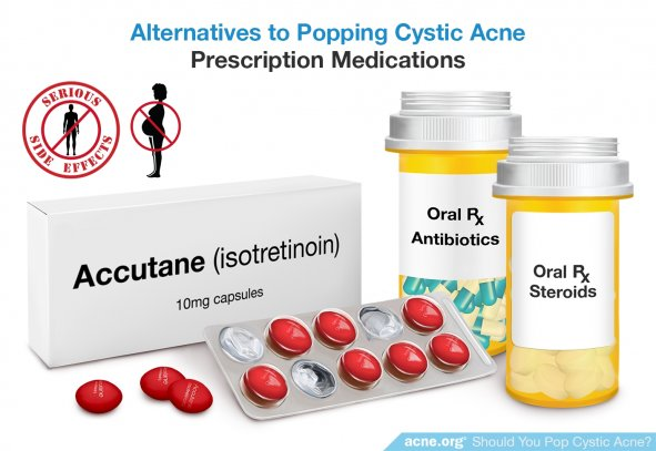 Alternatives to Popping Cystic Acne - Prescription Medications