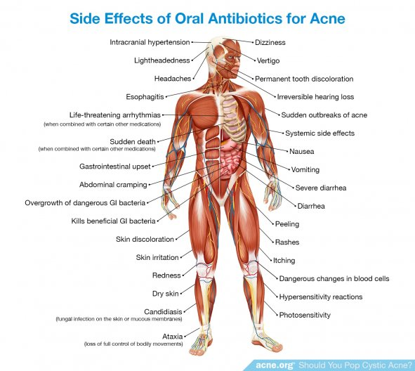 Side Effects of Oral Antibiotics for Acne