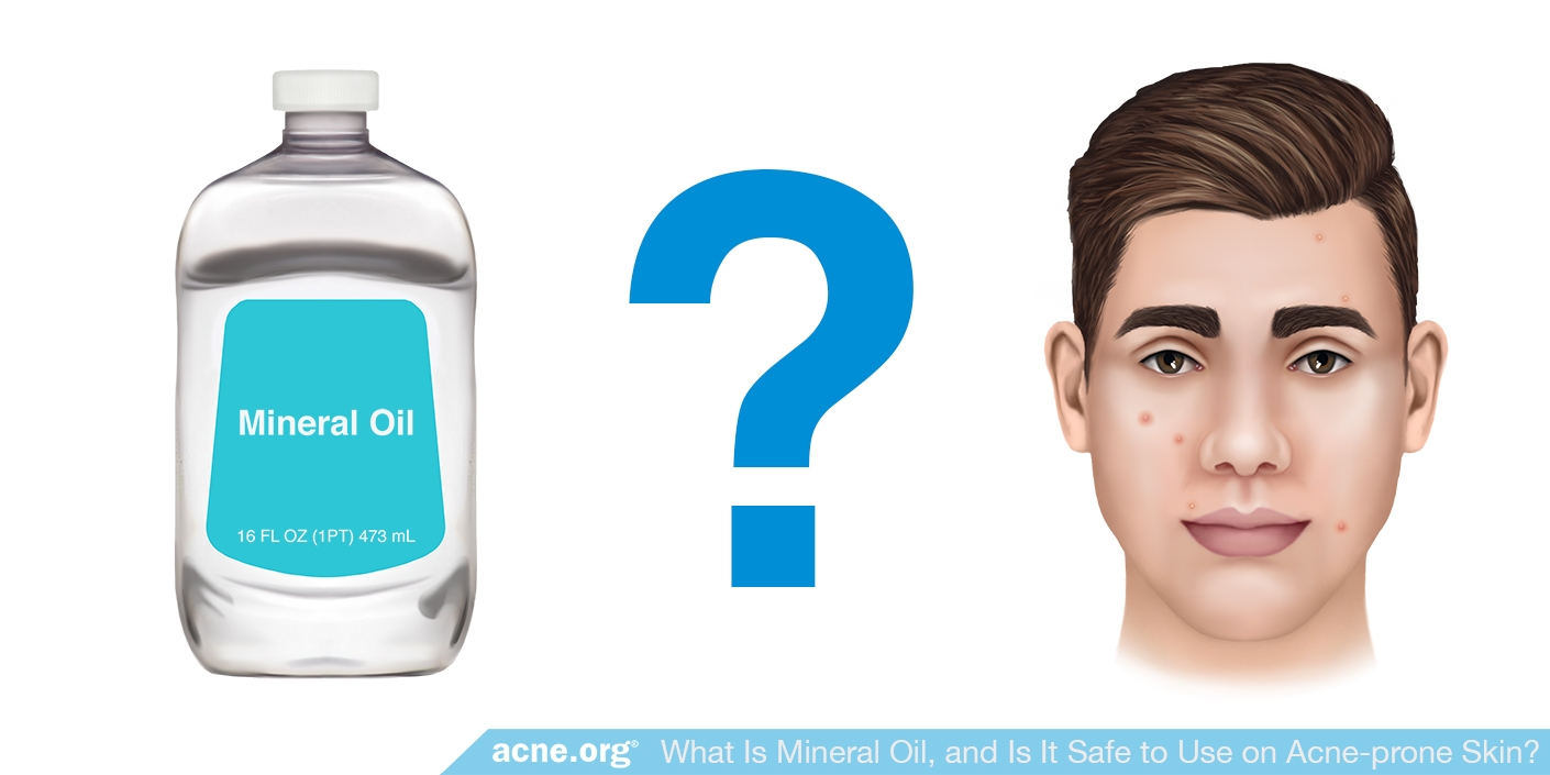Mineral Oil for Acne Treatment?