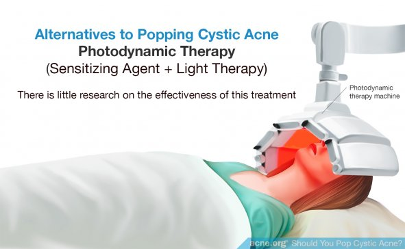 Alternatives to Popping Cystic Acne - Photodynamic Therapy