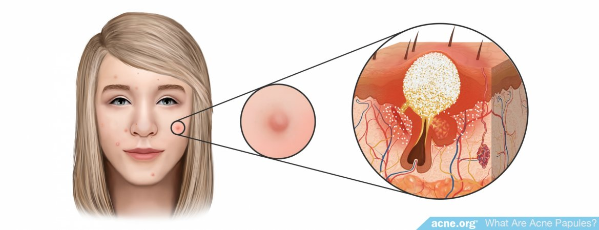 What Is an Acne Papule?