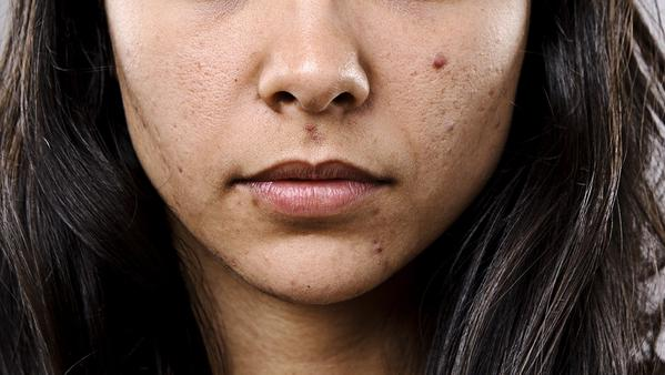 Unbelievable reasons why adults have acne 1.jpg
