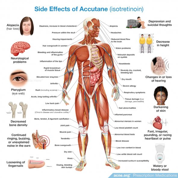 Side Effects of Accutane (Isotretinoin) for Acne