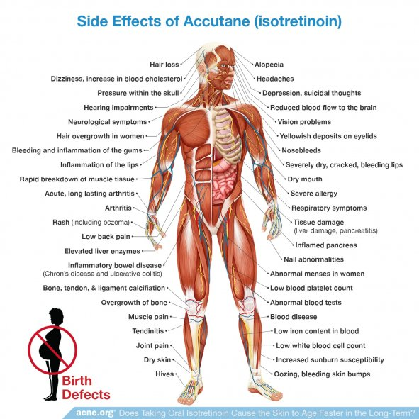 Side Effects of Isotretinoin (Accutane)