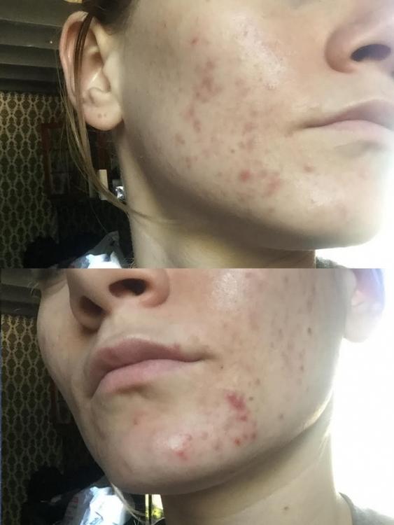 acne.thumb.jpg.3568d249b41a1dc854dd38e982ef72c3.jpg