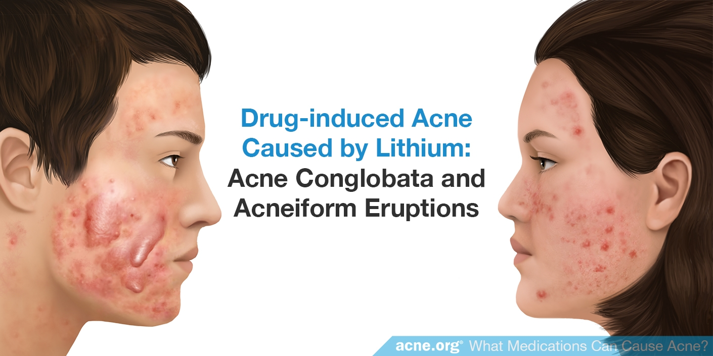 Drug-induced Acne Cause by Lithium