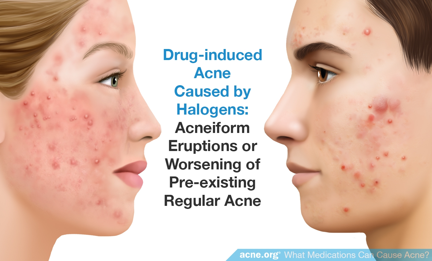 Drug-induced Acne Caused by Halogens