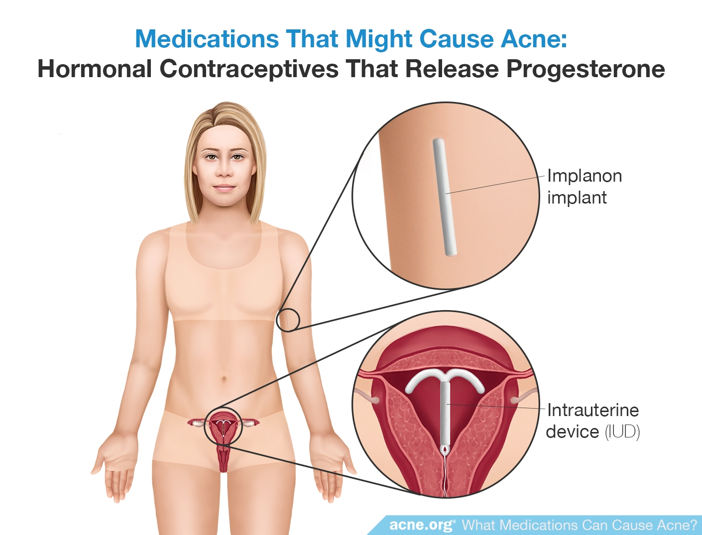 Hormonal Contraceptives that Release Progesterone - Might Cause Acne