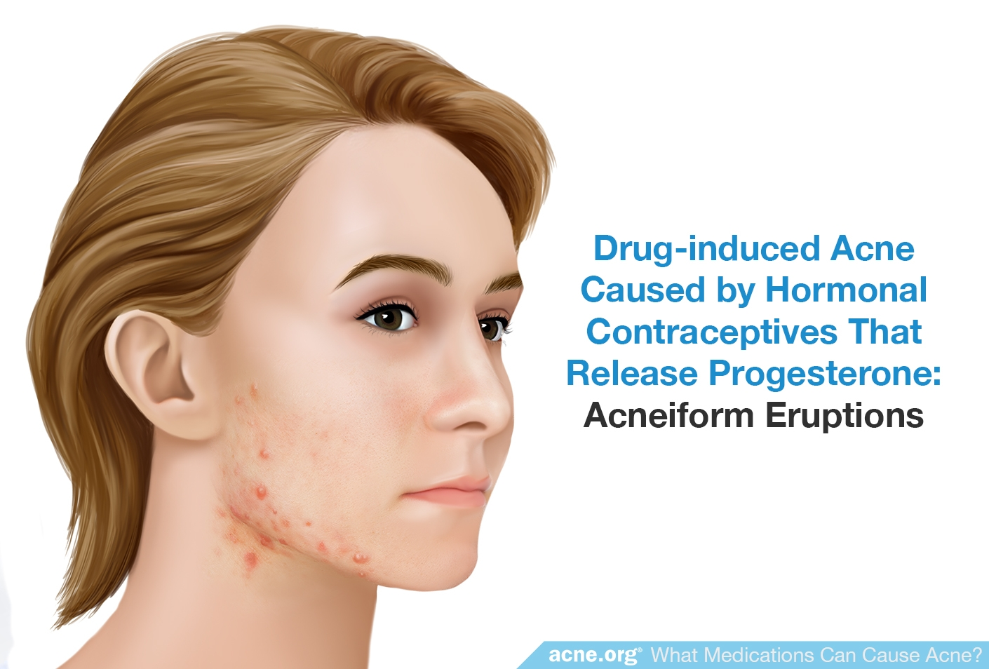 Drug-induced Acne Caused by Hormonal Contraceptives that Release Progesterone