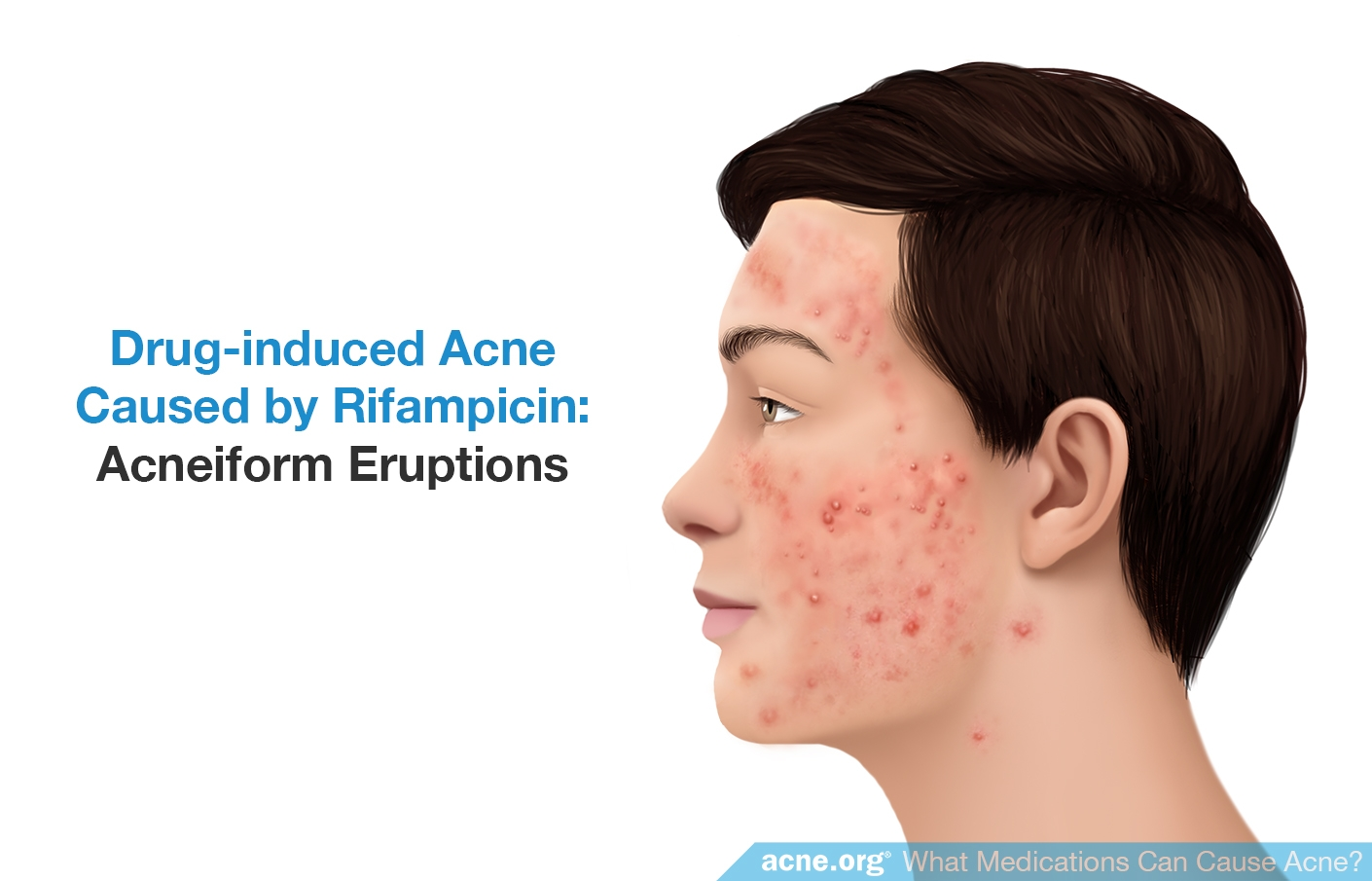 Drug-induced Acne Caused by Rifampicin