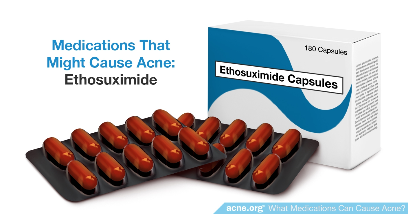 Ethosuximide - Might Cause Acne