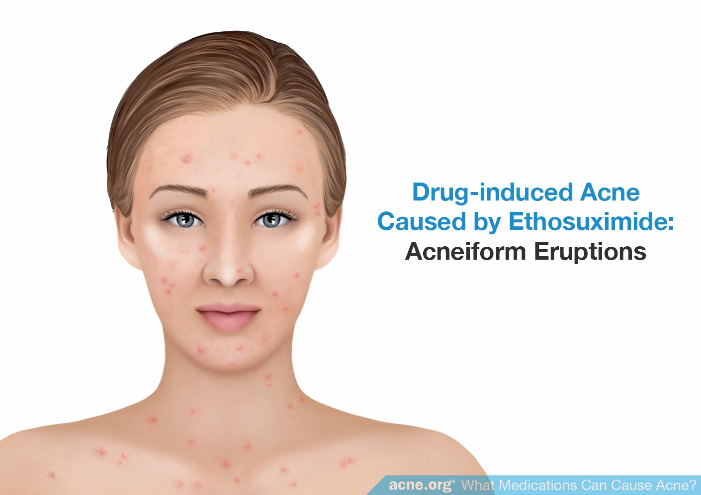 Drug-induced Acne Caused by Ethosuximide