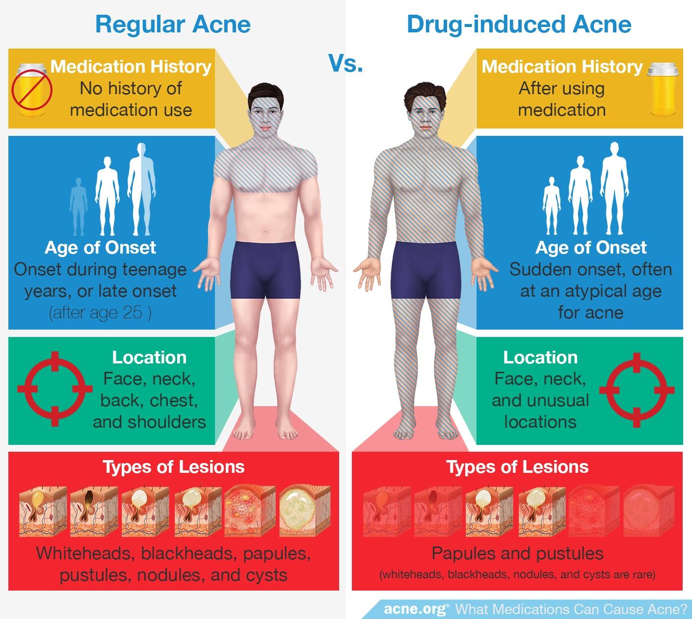 Regular Acne vs. Drug-induced Acne