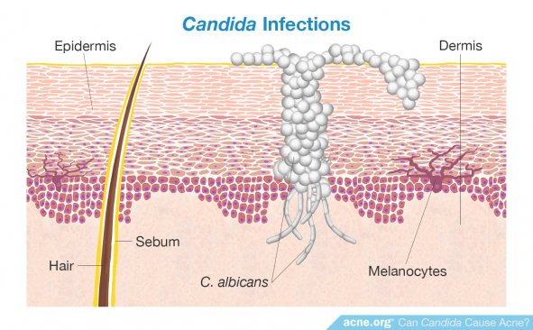 Candida Infections