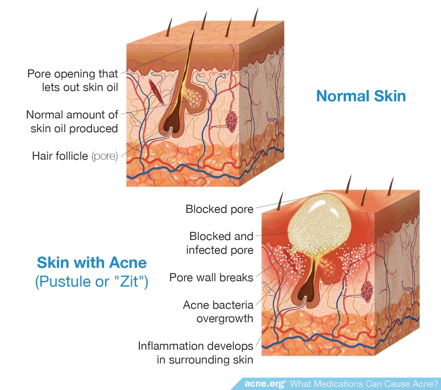 Normal Skin vs. Skin with Acne