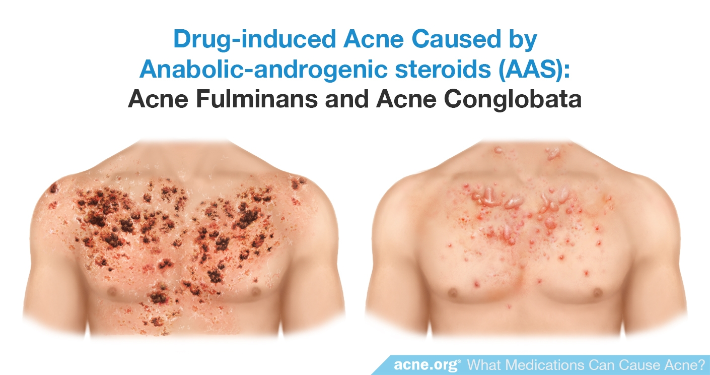 Drug-induced Acne Cause by Anabolic-androgenic Steroids