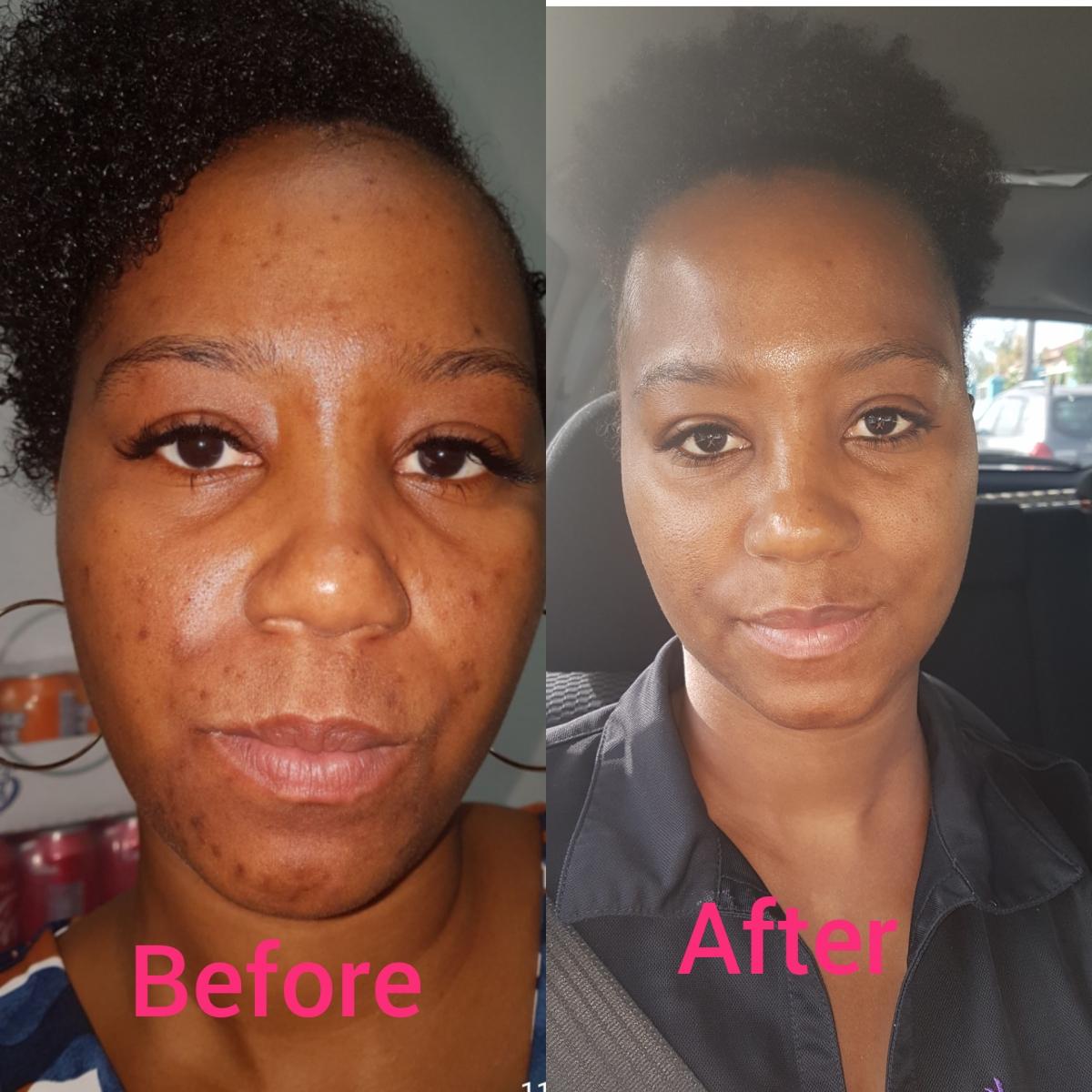 Clear Skin... Finally!!!!
