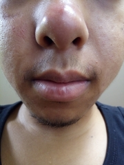 Acne scar black spot