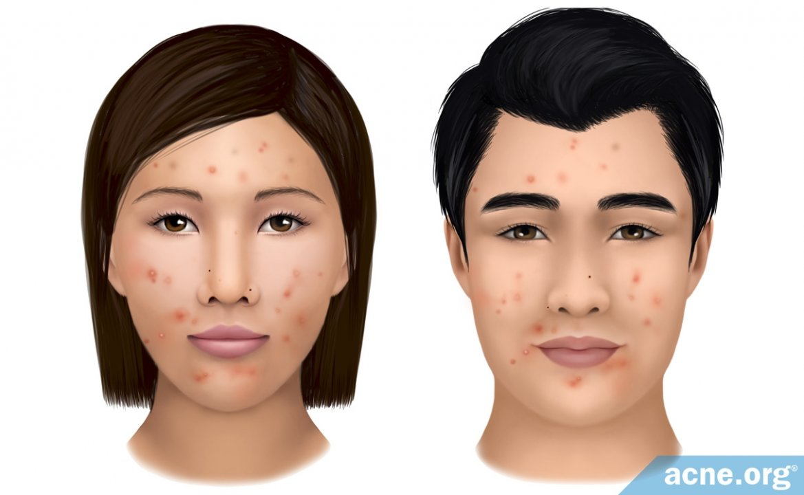 Asian skin and acne