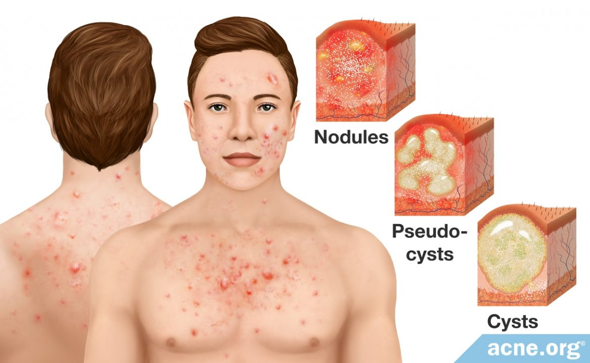 Cystic Acne on the Body