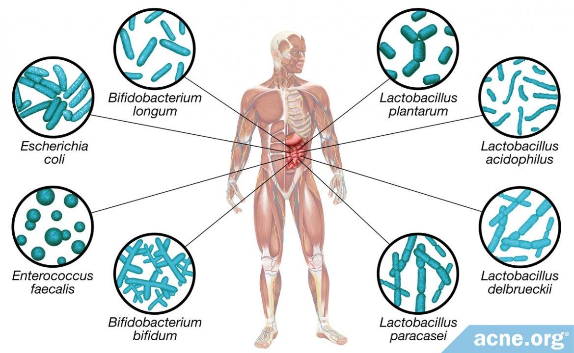 Do Probiotics Clear Acne?