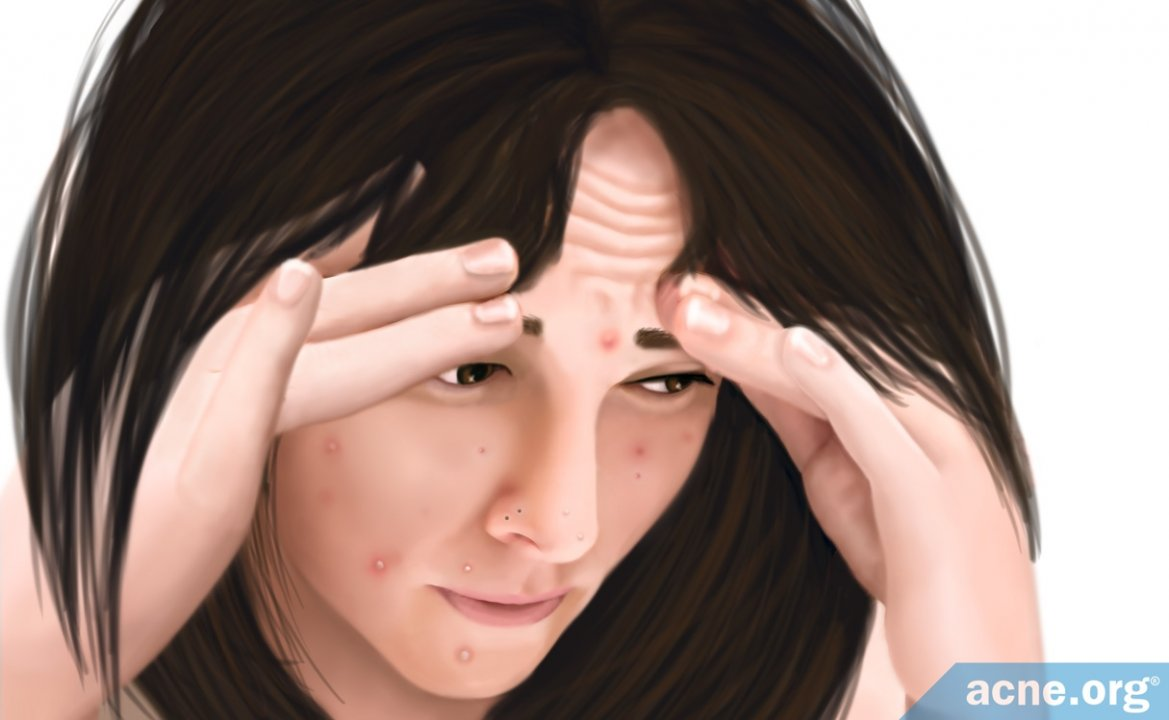 Does Stress Affect Acne?