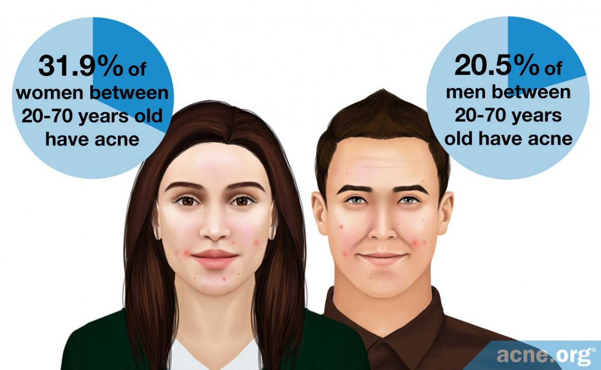 How Common Is Adult Acne?
