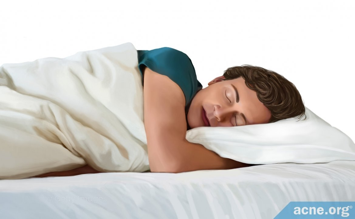 How Often Should an Acne-prone Person Change His/Her Pillowcase?